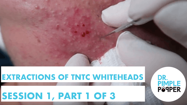 Extractions of TNTC Whiteheads: Sessi...