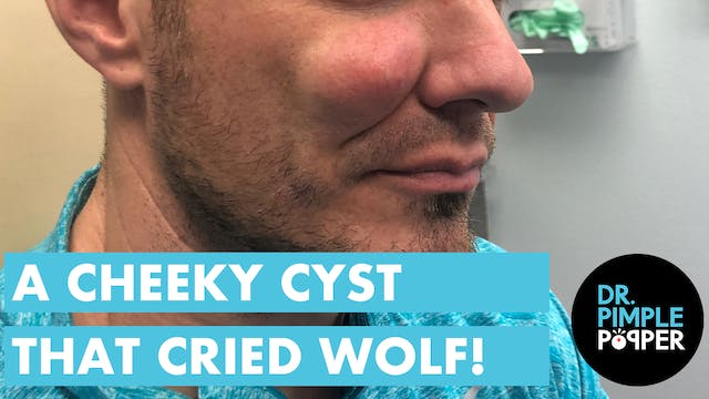 The Cheeky Cyst That Cried Wolf