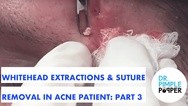 Whitehead extractions & Suture Remova...