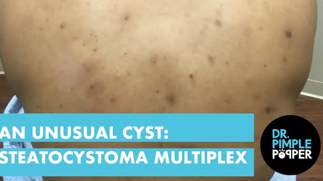 An Unusual Cyst: Steatocystoma Multiplex