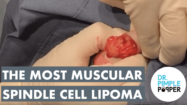 The Most Muscular Spindle Cell Lipoma