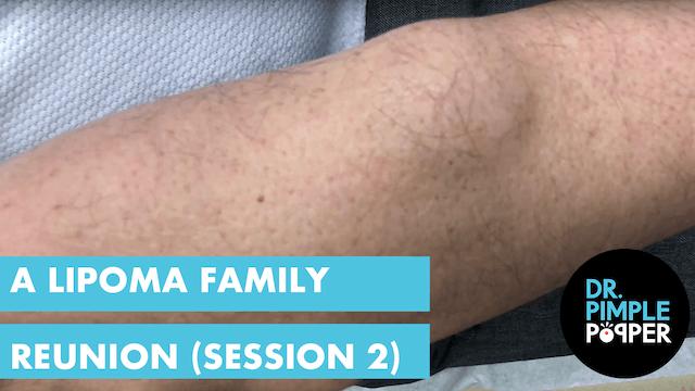 A Lipoma Family Reunion (Session 2)