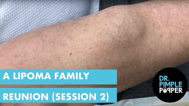 A Lipoma Family Reunion (Session 2)