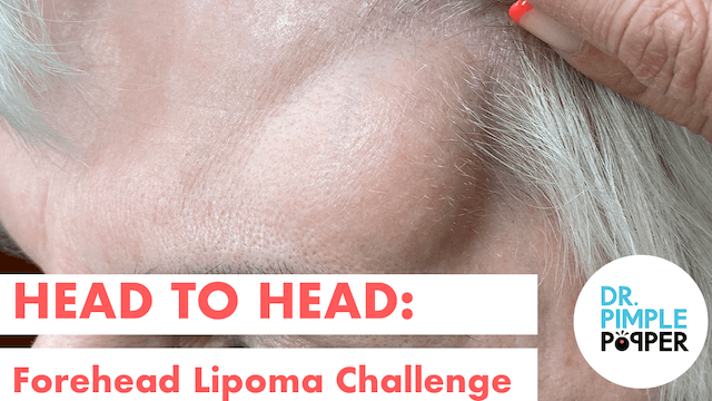 Head to Head: Forehead Lipoma Challenger 2