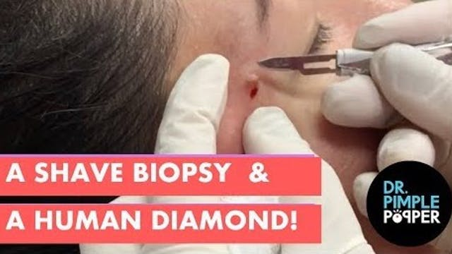 A Shave Biopsy and a Human Diamond