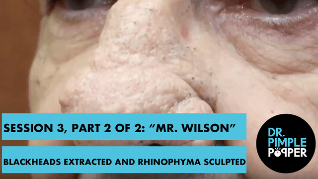 "Session 3, Part 2 of 2: ""Mr Wilson"" B..."
