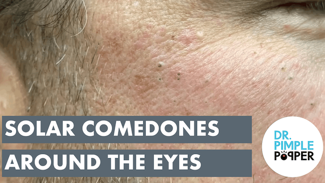 Favre Racouchot Solar Comedones aka Blackheads around the Eyes