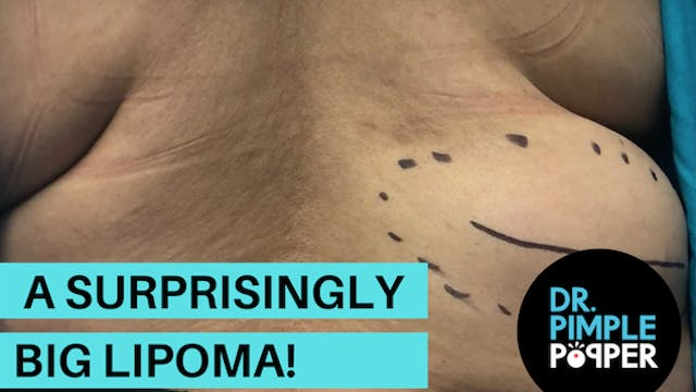 A Surprisingly Big Lipoma!