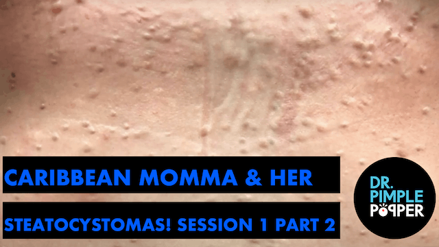 Caribbean Momma & Her Steatocystomas! Session One, Part Two