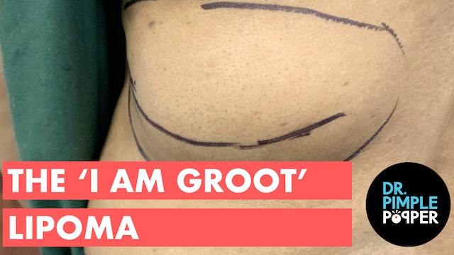 The 'I Am Groot' Lipoma