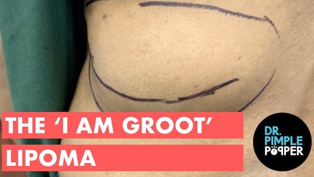 The 'I Am Groot' Lipoma