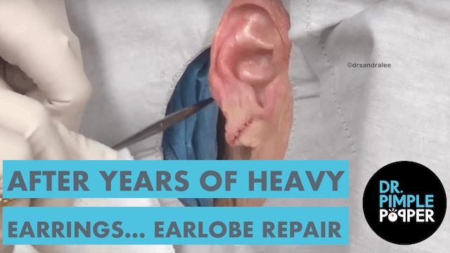After Years of Wearing Heavy Earrings... Earlobe Repair