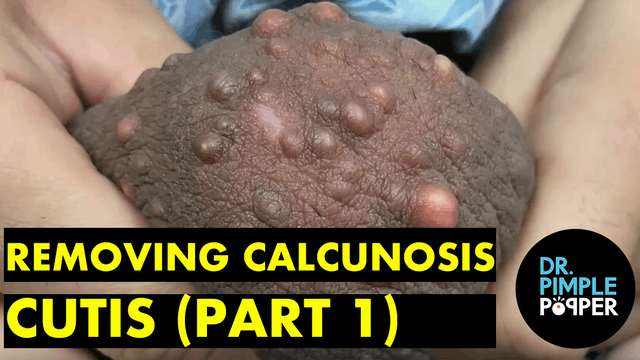 Removing Calcinosis Cutis (Part 1)