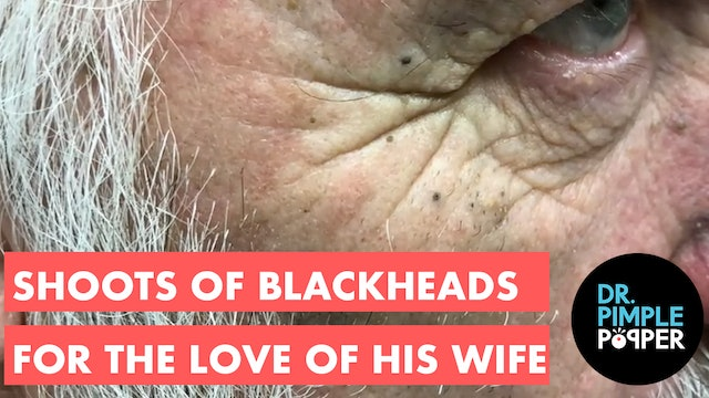Shoots of Blackheads for the Love of His Wife