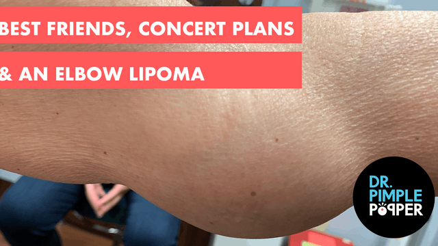 Best Friends, Concert Plans & An Elbow Lipoma