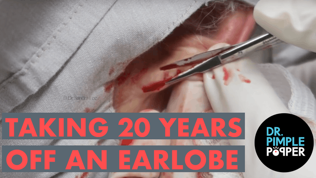 Taking 20 Years Off an Earlobe