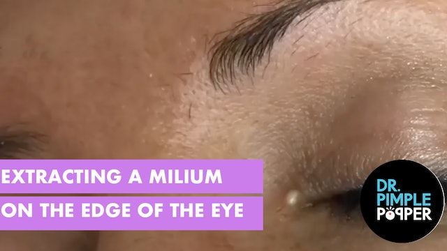 Extracting a Milia on the Edge of the Eye
