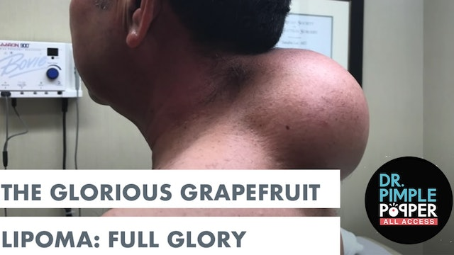 Dr. Pimple Popper Presents: The Glorious Grapefruit, Full Glory