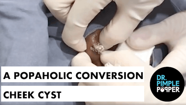 A Popaholic Conversion Cheek Cyst