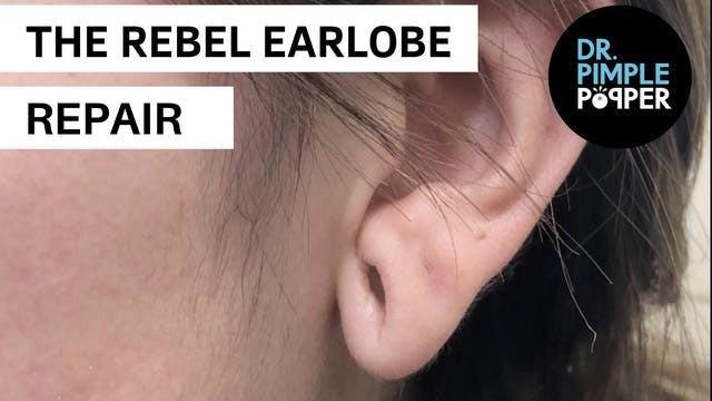 The Rebel Earlobe Repair