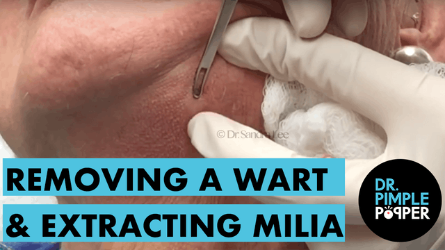 Removing a Wart+Extracting Milia