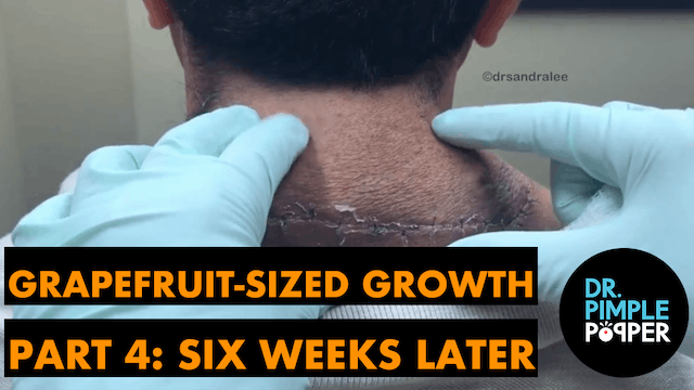 Grapefruit sized growth: Six weeks la...