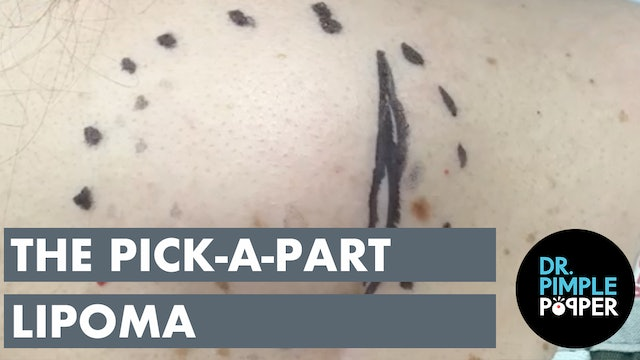 The Pick-A-Part Lipoma