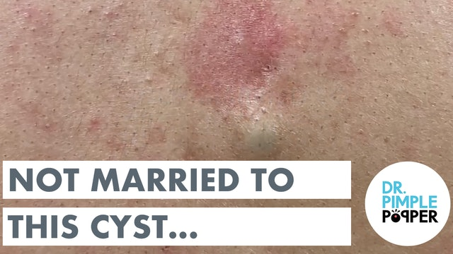 Not Married to this Cyst