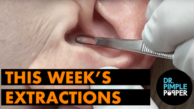 This Weeks Extractions!