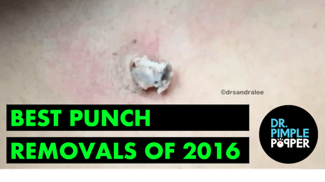 Dr Pimple Popper's Best Punch Removal...