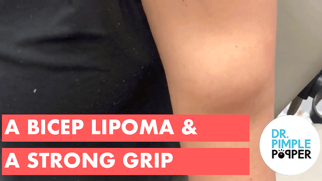 A Bicep Lipoma & A Strong Grip