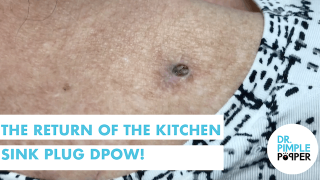 The Return of The Kitchen Sink Plug Dilate Pore of Winer!