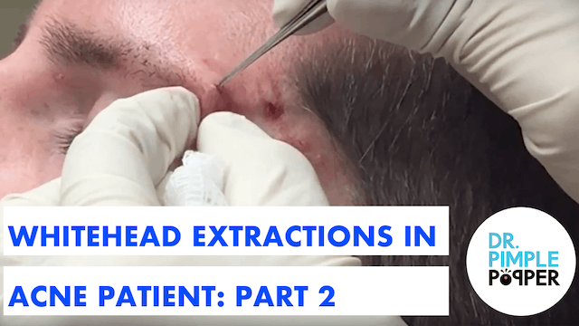 Whitehead Extractions in an Acne Pati...