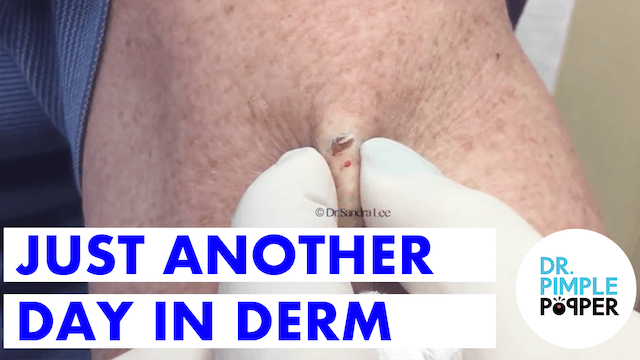 Just Another Day in Derm: Dr. Pimple Popper