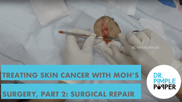 Treating Skin Cancer with Mohs surger...