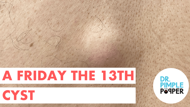 A Friday the 13th Cyst