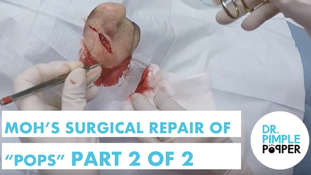 """Surgical repair of a Skin Cancer after Mohs Surgery on """"Pops"""": Part 2 of 2"""