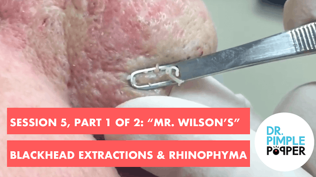 "Session 5, Part 1 of 2: ""Mr Wilson's""..."