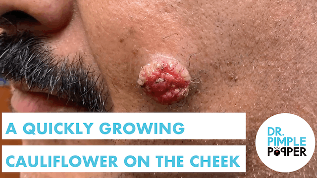 A Quickly Growing Cauliflower on the Cheek