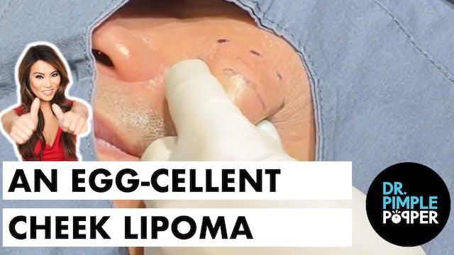 An Egg-cellent Cheek Lipoma