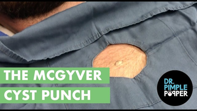The MacGyver Cyst Punch