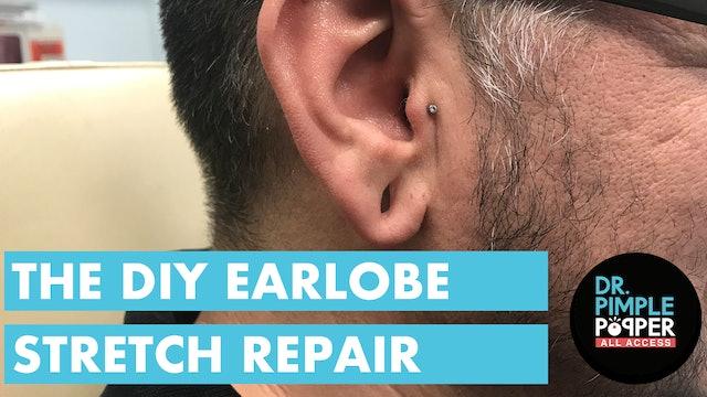 The DIY Earlobe Stretch Repair