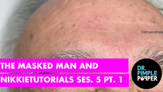 The Masked Man and NikkieTutorials: Blackhead Extraction Part1