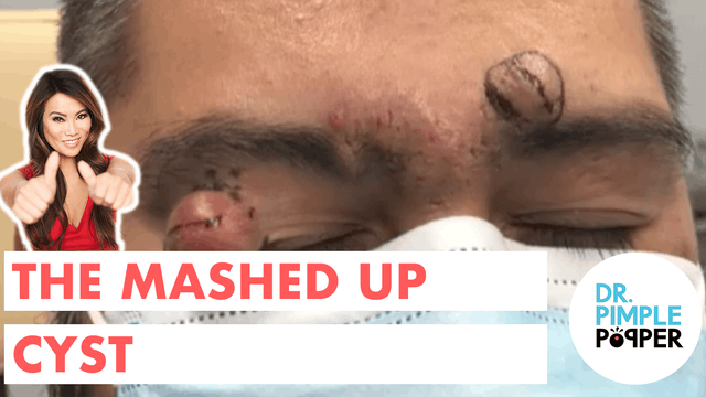Queen of Pops' Pick: The Mashed Up Cyst