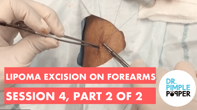Lipoma excision on forearms, Session 4, Part 2 of 2