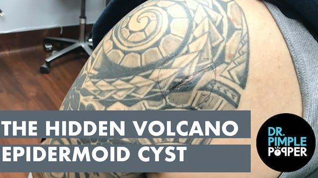 A Hidden Volcano Cyst
