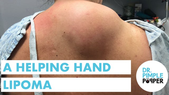 A Helping Hand Lipoma