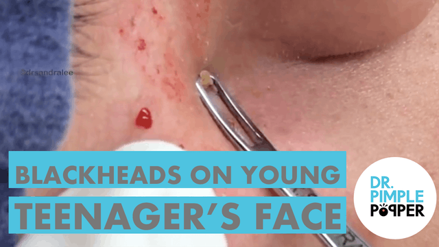 Blackheads on a Young Teenager's Face