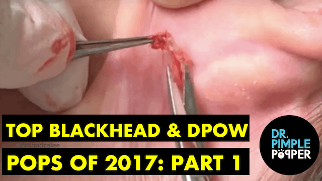 Dr Pimple Popper's Top Blackhead & DP...