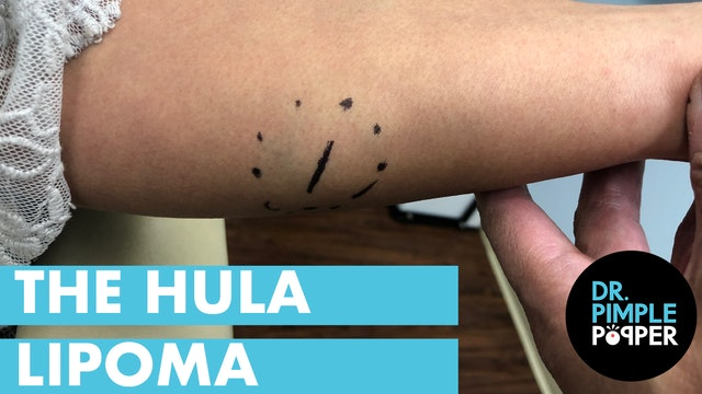 The Hula Lipoma